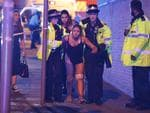 An injured woman seen near Manchester Arena after reports of an explosion during an Ariana Grande concert. Picture: Joel Goodman/LNP