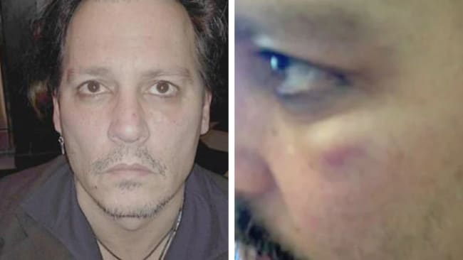 Johnny Depp also provided pictures of his bruised face. Picture: Fairfax County Court Source: Supplied