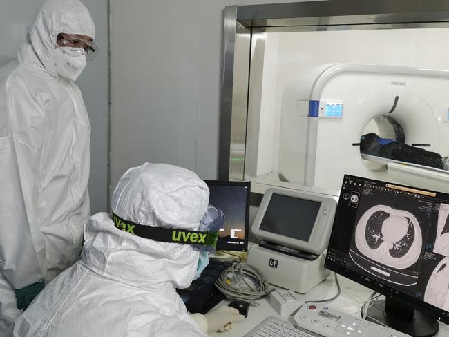 Doctors scan a patient's lungs at Huoshenshan temporary hospital built for patients diagnosed with coronavirus in Wuhan in central China's Hubei province. Picture: Gao Xiang/Xinhua via AP