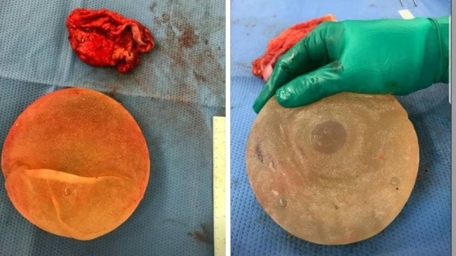 I was shocked to see the damage in the implants. Photo: Supplied