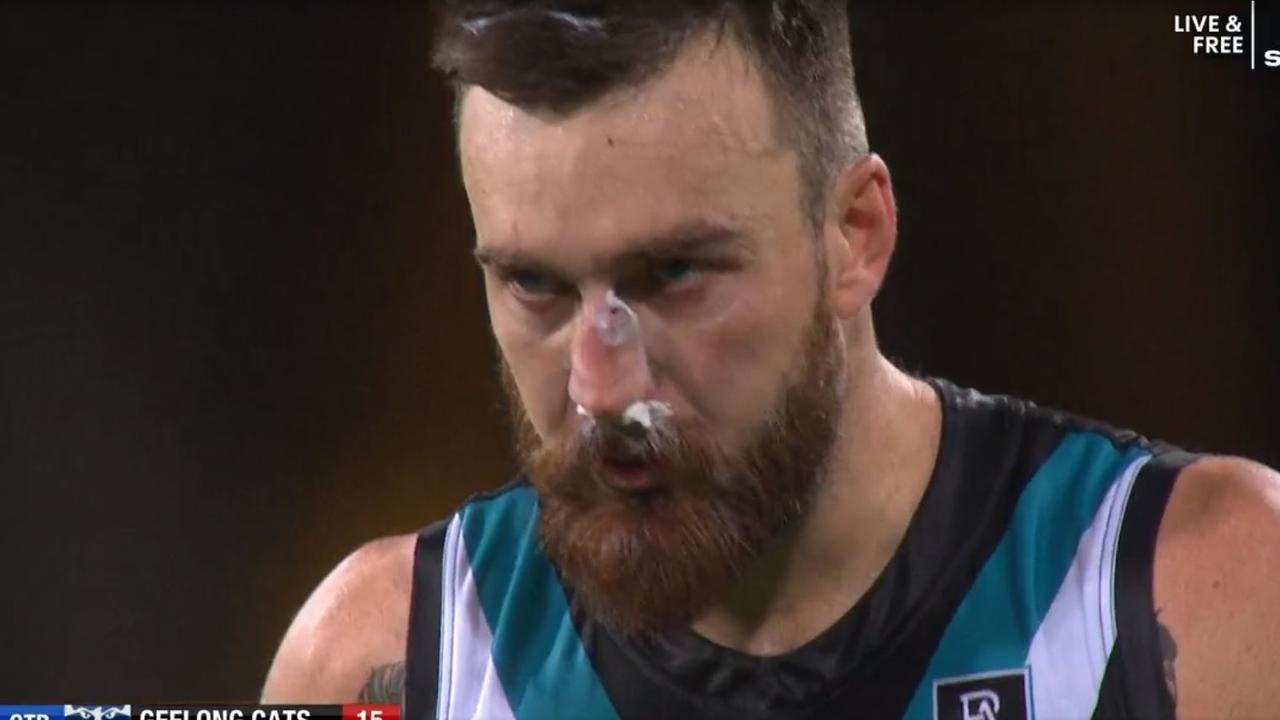 Port Adelaide's Charlie Dixon had to use an old-fashioned method after having his nose rearranged.
