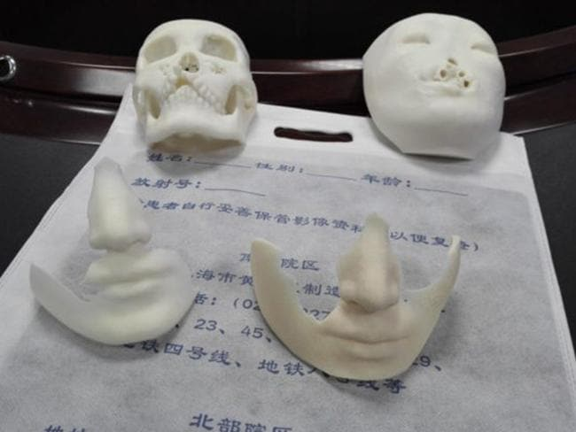 Doctors used 3D printing technology to help restore Jin Qi's face. Picture: Xinhua