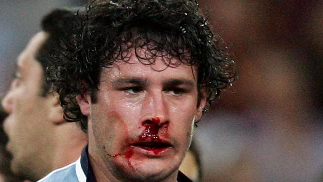 Football player Brett White with a bleeding nose during State of Origin. Source: News Limited