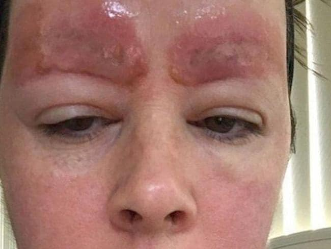 Skincare Laser Clinic Point Cook Sues Over Eyebrow Tattoo