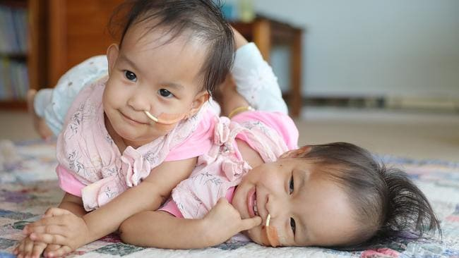 Bhutanese conjoined twins Nima (left) and Dawa (right) before their surgery. Picture: Alex Coppel