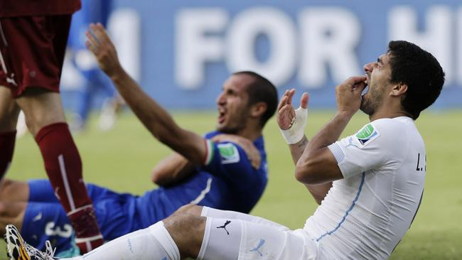 Uruguay's Luis Suarez holds his teeth after biting Italy's Giorgio Chiellini's shoulder.