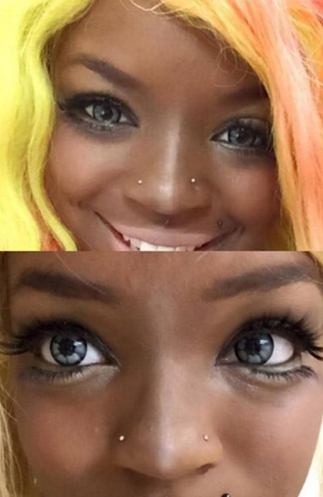 Beauty addict reveals what her eyes look like before and after getting injected with fillers.