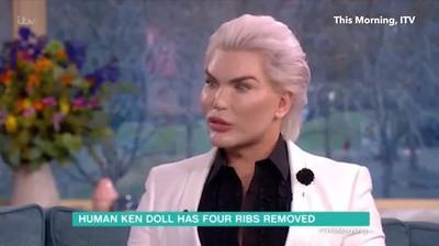 Human Ken Doll has four ribs removed