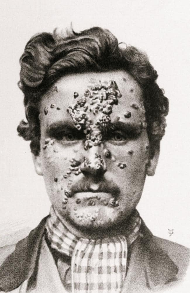 Lesions of secondary syphilis on a man's face.