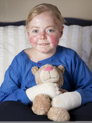 Eliza Baird, pictured at 15, suffered a lifetime of pain and needed to be bandaged daily. Picture: Nathan Dyer