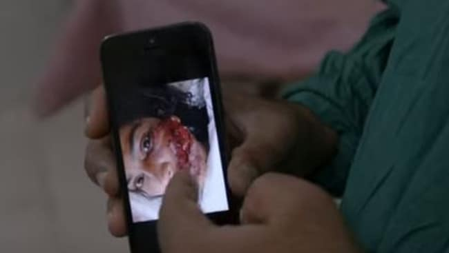 A still from the documentary showing the horrific injuries Saba Qaiser suffered.