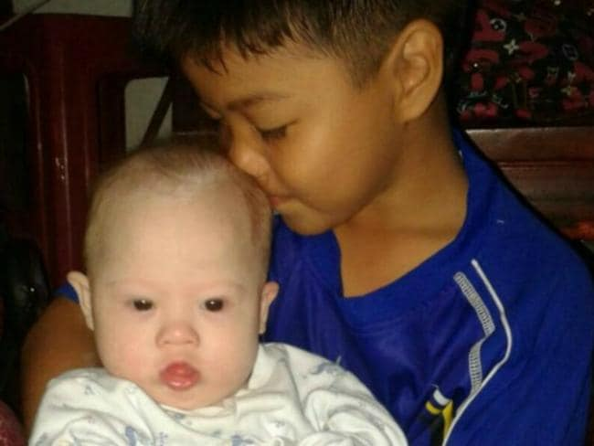 Critically ill ... Gammy's surrogate mother is trying to raise funds to pay for an operation to treat his congenital heart condition.