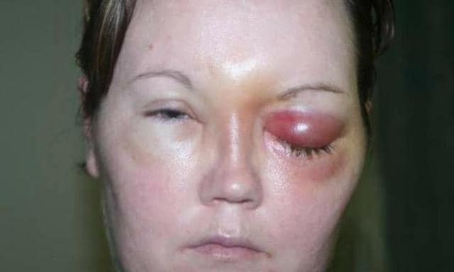 Claire Whiteside was left blind and paralysed after a parasite found its way into her contact lens. Source: Press Association