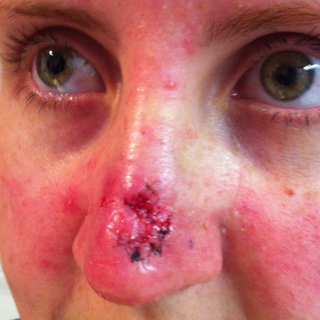 The 27-year-old was devastated when a dermatologist told her she had skin cancer.