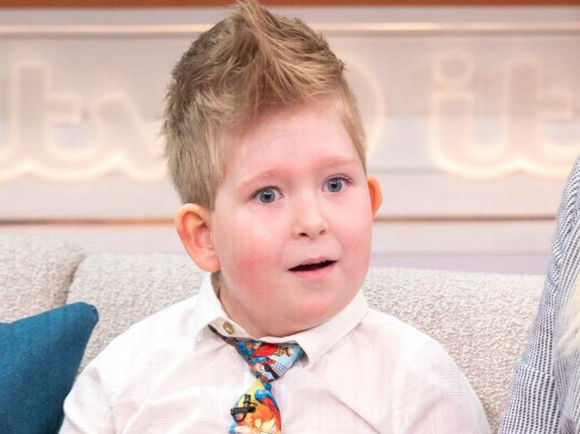 Noah Wall was born missing a huge part of his brain. Picture: ITV