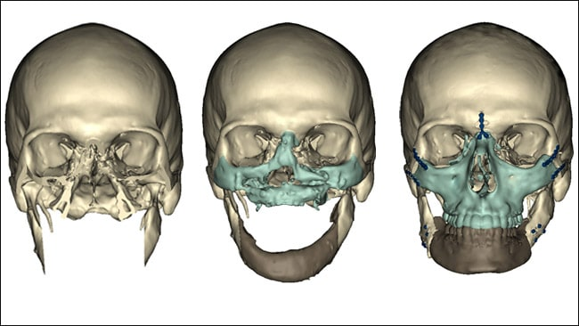 Medical CT scans showing the reconstructive process that Richard Norris's face went. Picture: Courtesy of University Of Maryland Medical Center