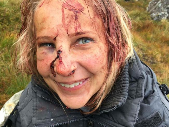 Magdalena Michalowska smiles for the camera after her fall, not realising how injured she really was. Picture: Deadline News