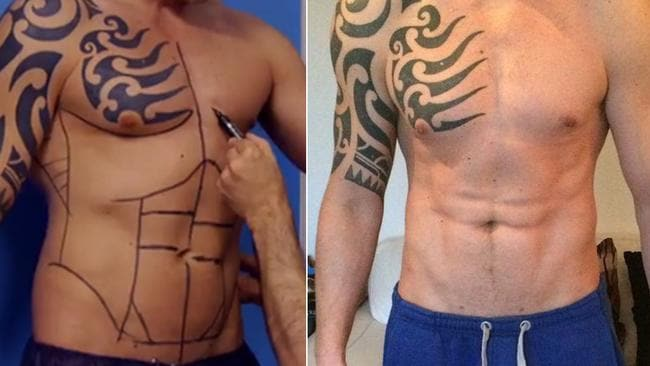 Man gets permanent sixpack with $7K abdominal etching operation
