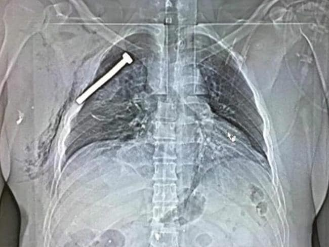 An x-ray image of a person injured during the Brussels terror attacks shows a big nail or screw in the chest of the patient treated at the Military Hospital. Picture: EPA/AAP