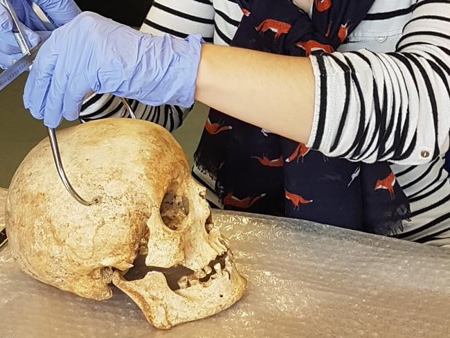 Dr Sarah Inskip examines the skull of Context 958. Picture: Laure Bonner