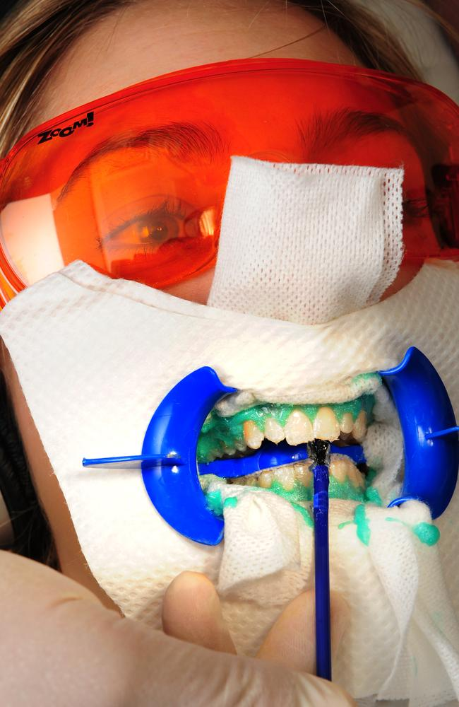 Dentists offer many teeth-whitening options. Picture: Chris Pavlich