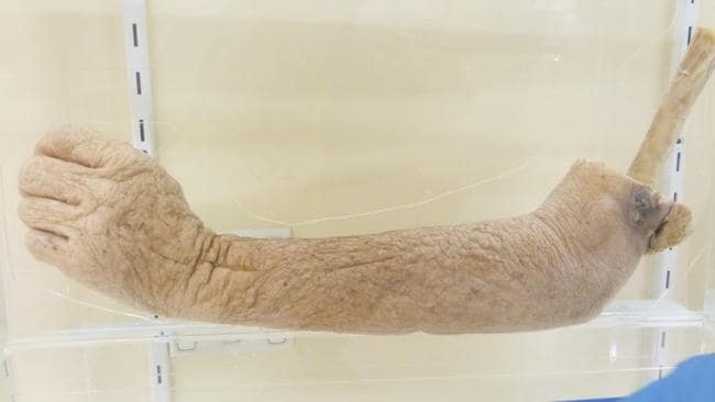 The amputated arm of a person with skin cancer that invaded the skeletal muscle. Picture: Ginger Gorman