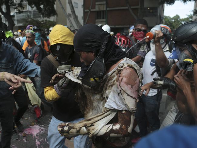 A man is aided by fellow anti-government protesters after he was burnt when demonstrators set fire to a Bolivarian National Guard motorbike in Caracas. Picture: Fernando Llano.