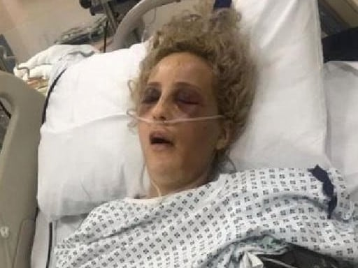 Britney's cousin described her as being beaten 'black and blue' by the attacker. Picture: South West News Service