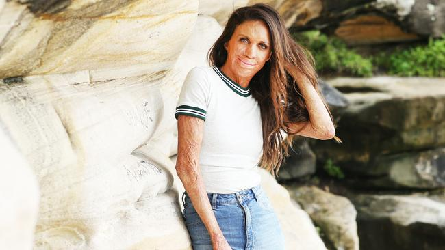 Turia Pitt has shared some of her most embarrassing career fails. Picture: Rohan Kelly