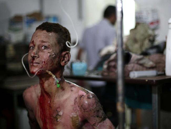 A seriously wounded Syrian boy looks on as he is treated at a makeshift hospital on June 28, 2014, following a reported car bomb explosion at a popular market in the town of Douma. Photo: ABD DOUMANY