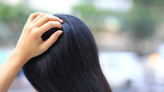 Having dry scalp is a nightmare! Image: iStock.
