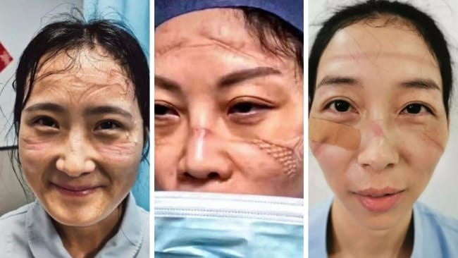 Nurses in China show their PPE battle scars. Image: Twitter PD China.