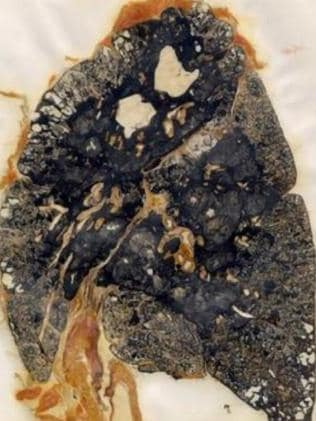 Specimen of lung with Progressive Massive Fibrosis, a later stage of CWP.