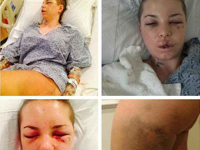 Images of Christy Mack Mackinday after the alleged attack. Picture: Instagram