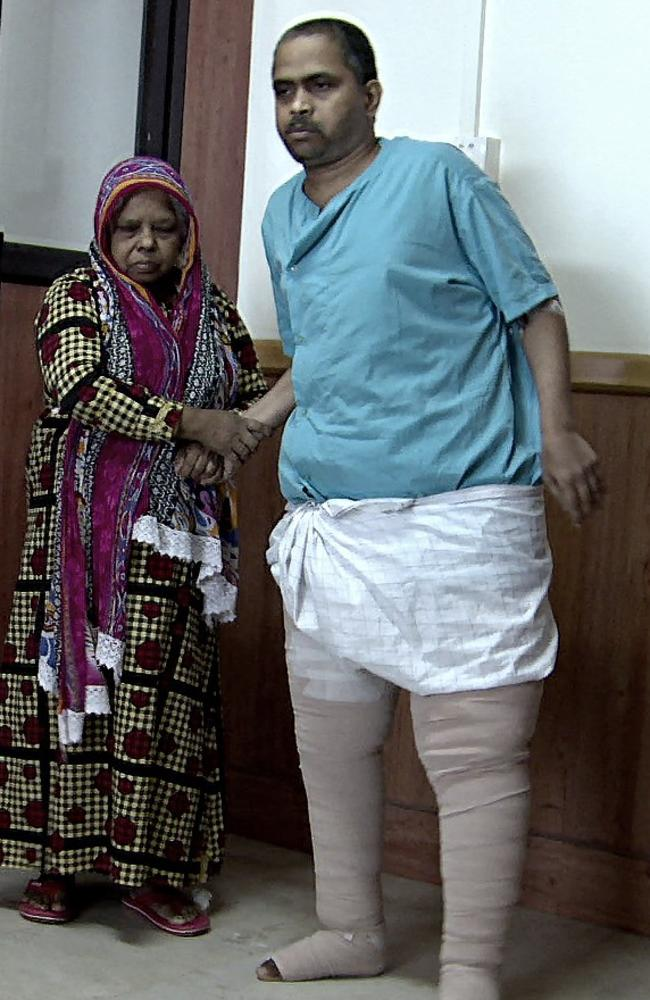 Saidalavi is now recovering and able to walk after years being bedridden. Picture: Caters
