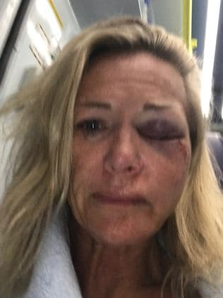 Karen Sadler was on holiday in Ibiza when she was attacked by a Tinder date.