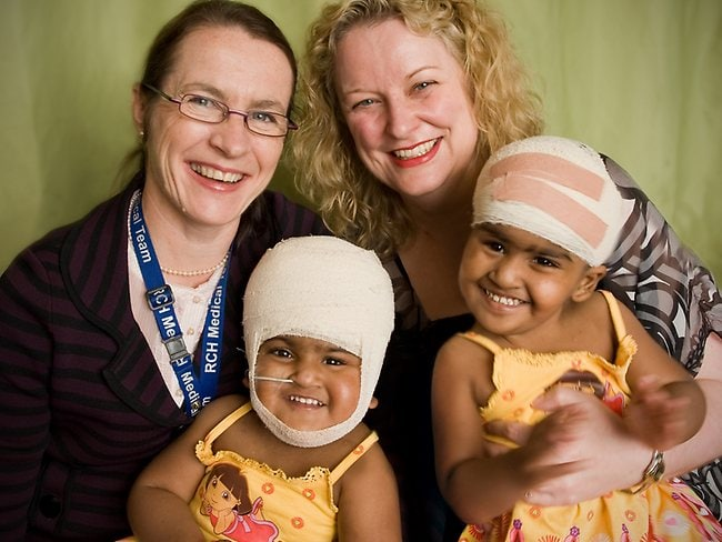 Krishna (left) and Trishna with their neurosurgeons Wirginia Maixner and Alison Wray. Picture: Royal Children's Hospital/Robert Reitmaier