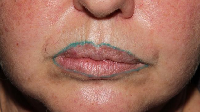 Victorian Womans Nightmare After Tattooed Lip Liner Turned Green