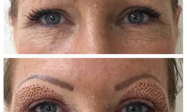 Supplied. Stacey Buttriss. Before and after,