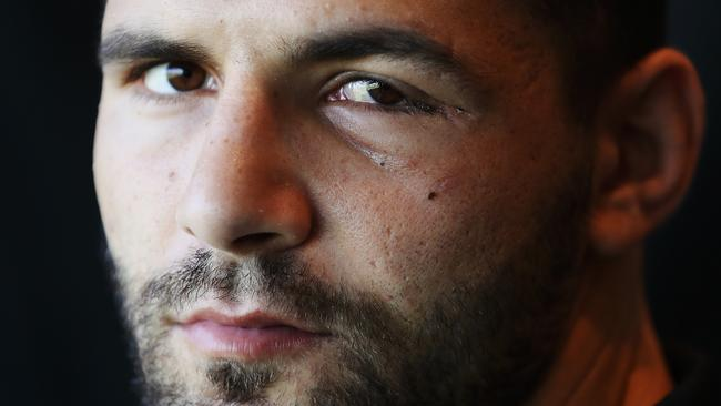The surgery that almost cost Josh Mansour his eye. | Daily ...