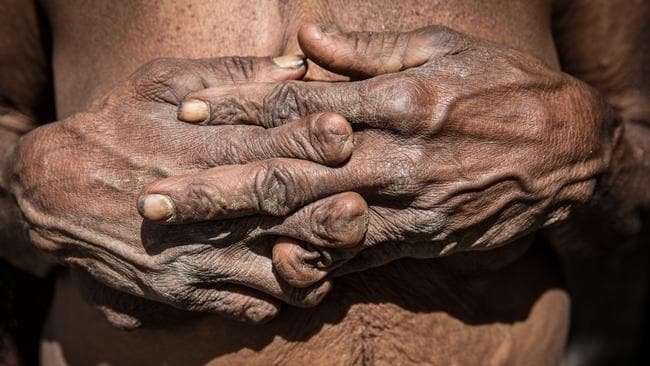 The fingers can be amputated with and without the use of weapons. Picture: Agung Parameswara/Getty Images