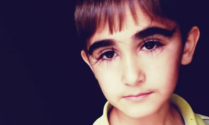 Boy with record-breaking 5cm long eyelashes