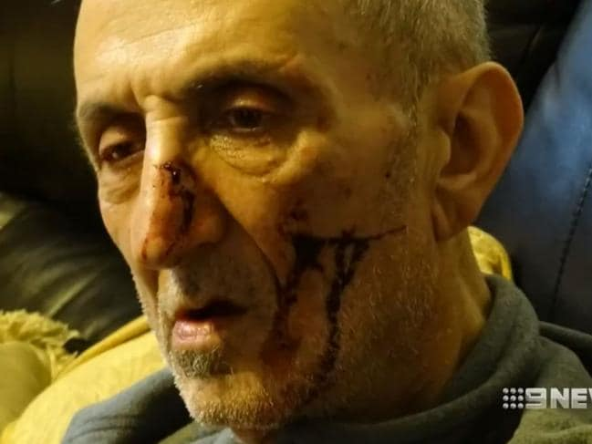 Mr Khallouf was left with injuries to his face. Picture: Nine News/Channel 9