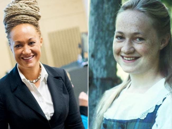 Rachel Dolezal has challenged her parents to have a DNA test.